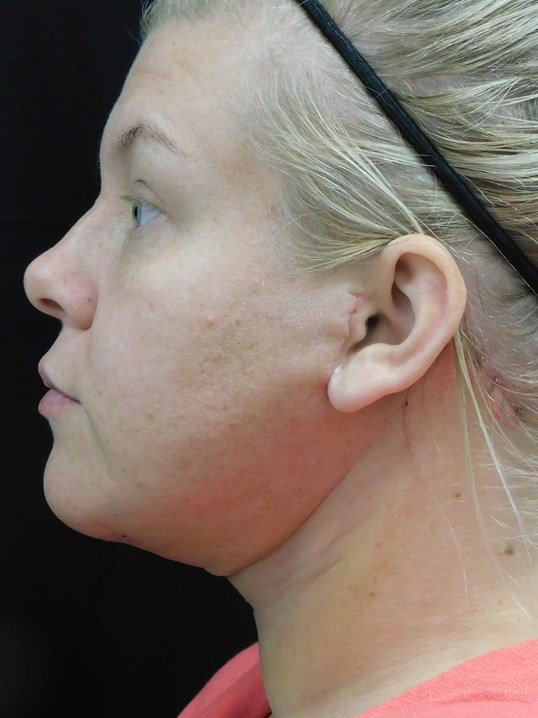 Isolated Neck Lift After