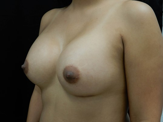 Silicone Breast Augmentation After