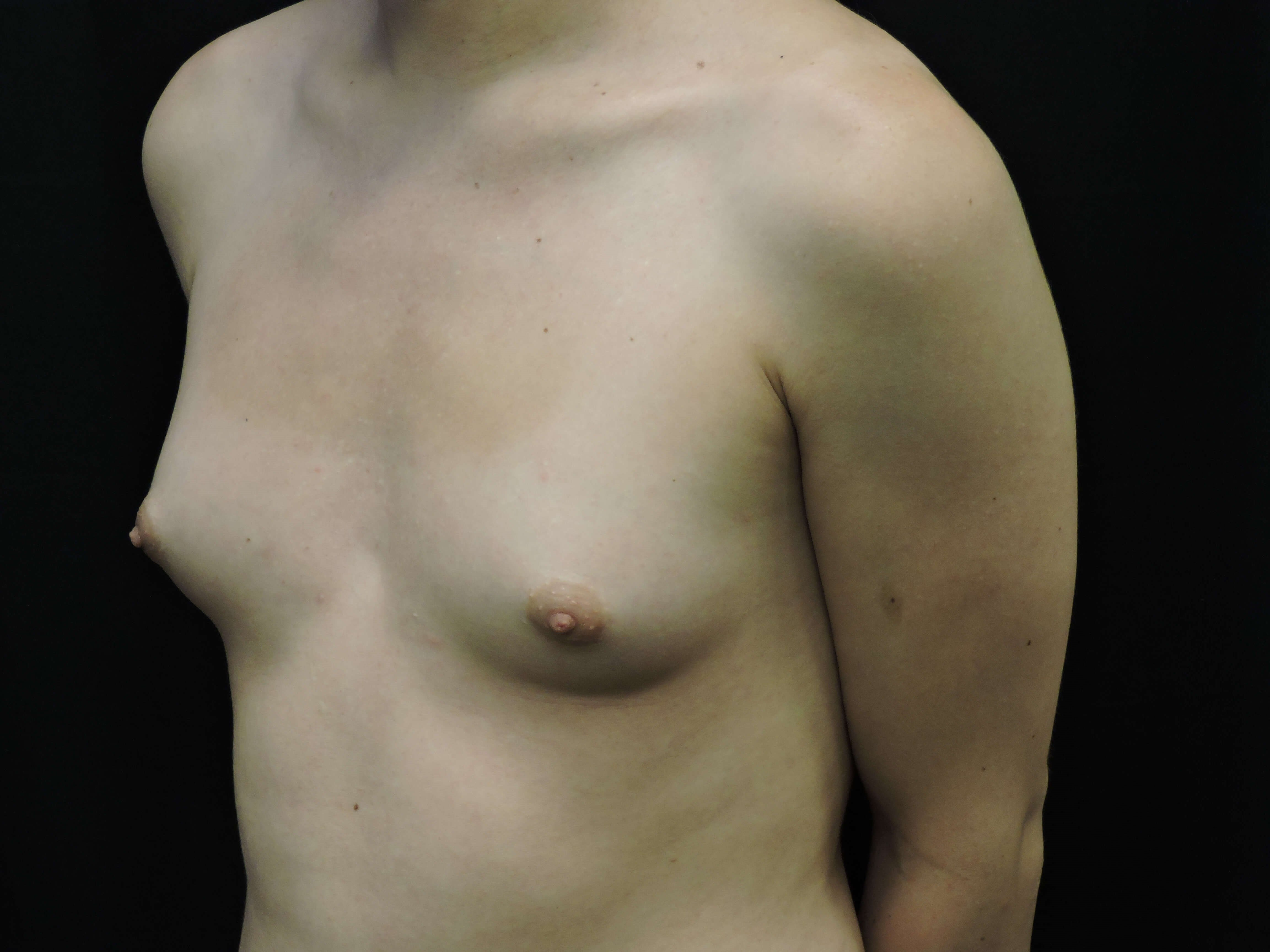 Silicone Breast Augmentation Before
