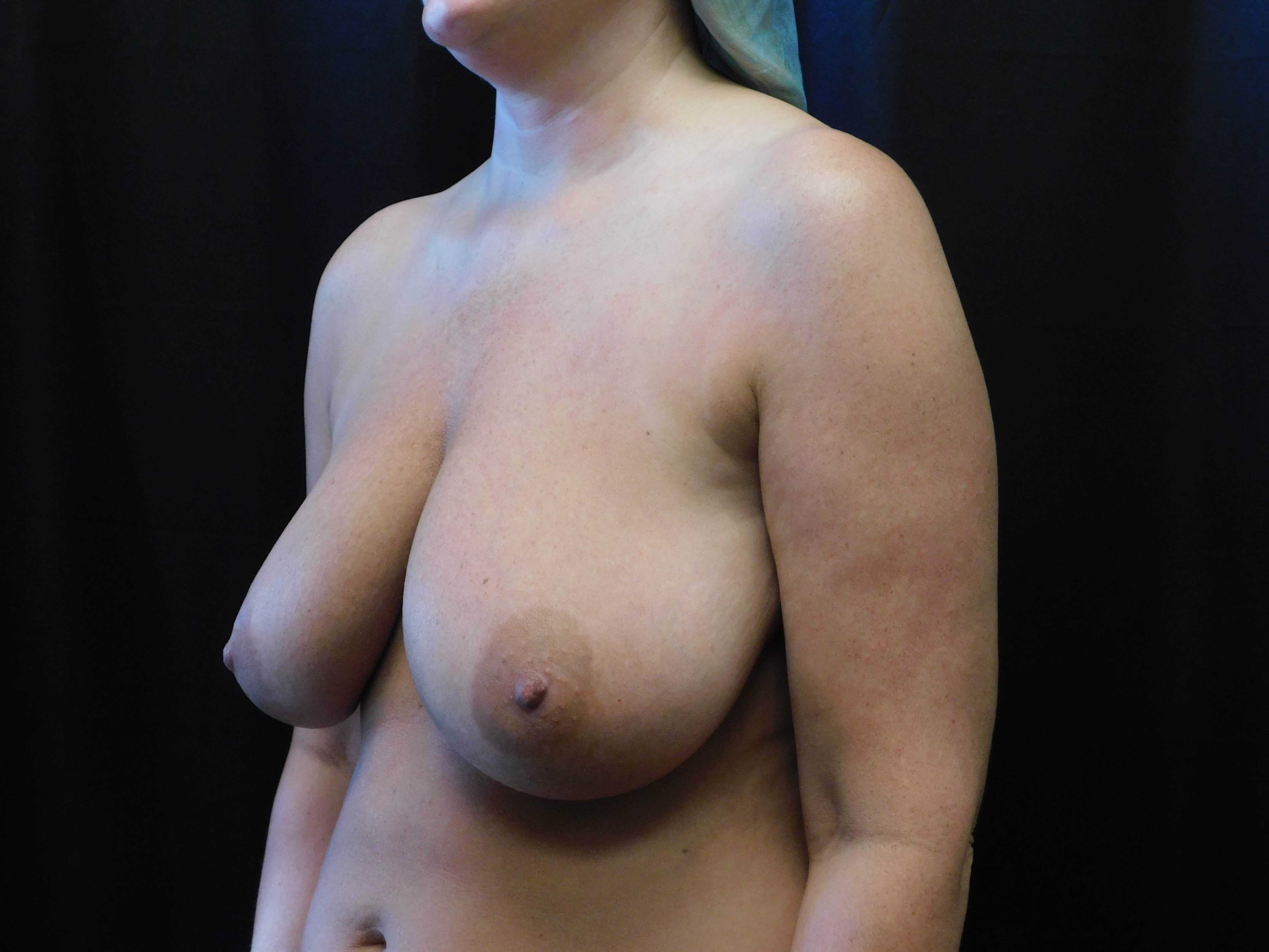 Breast Aug w/ Lift Before