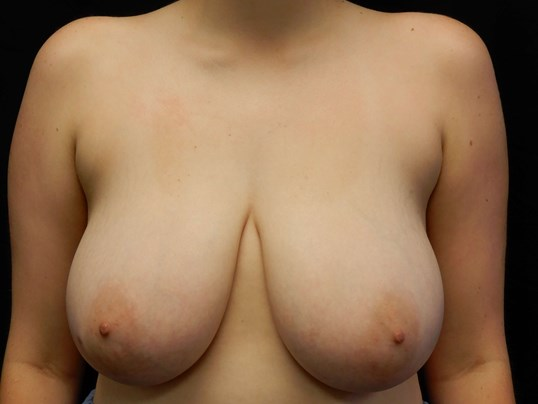 Breast Reduction - OKC Before