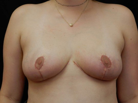 Breast Reduction - OKC After