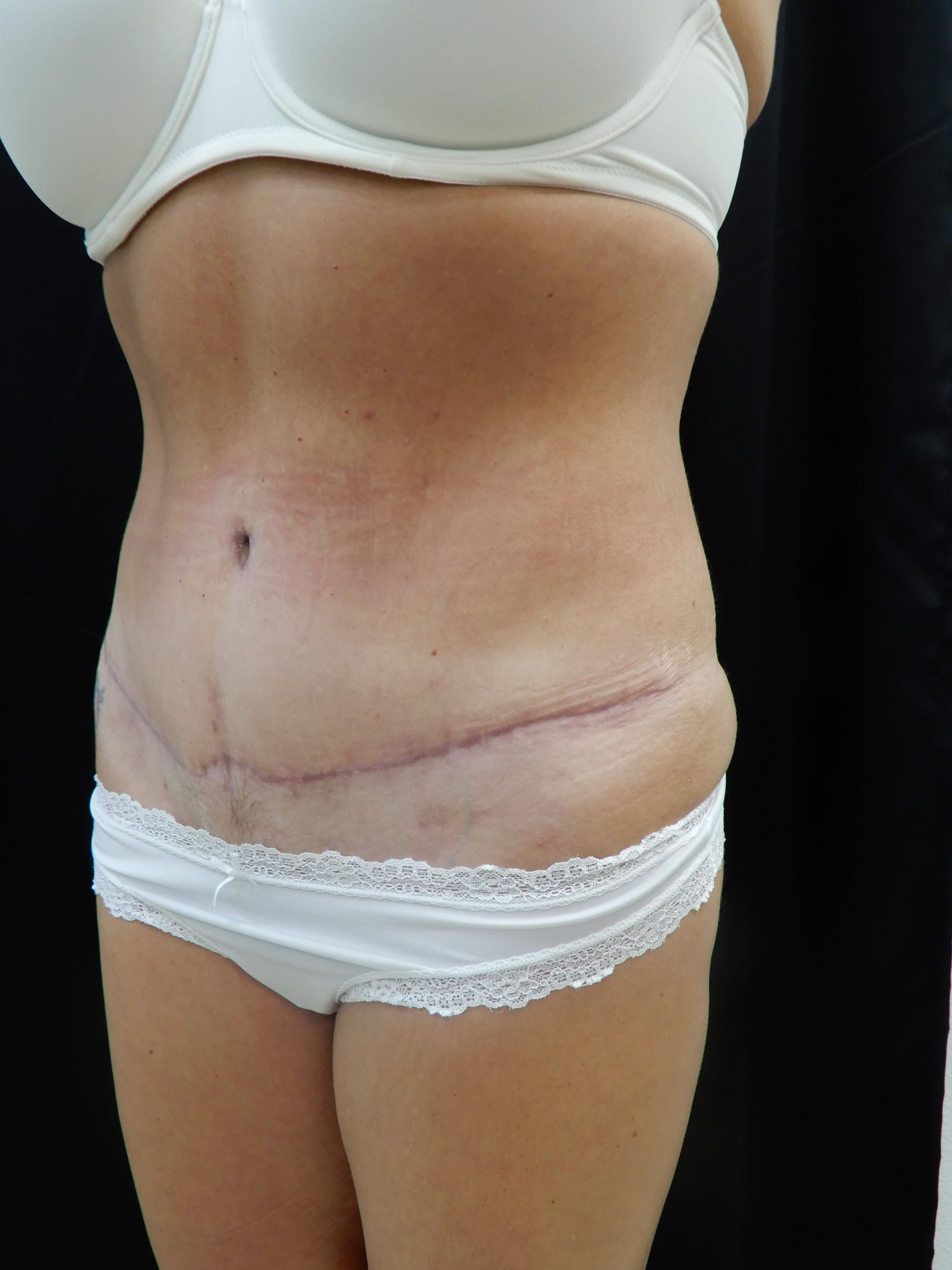 Tummy Tuck w/ Flank Lipo After
