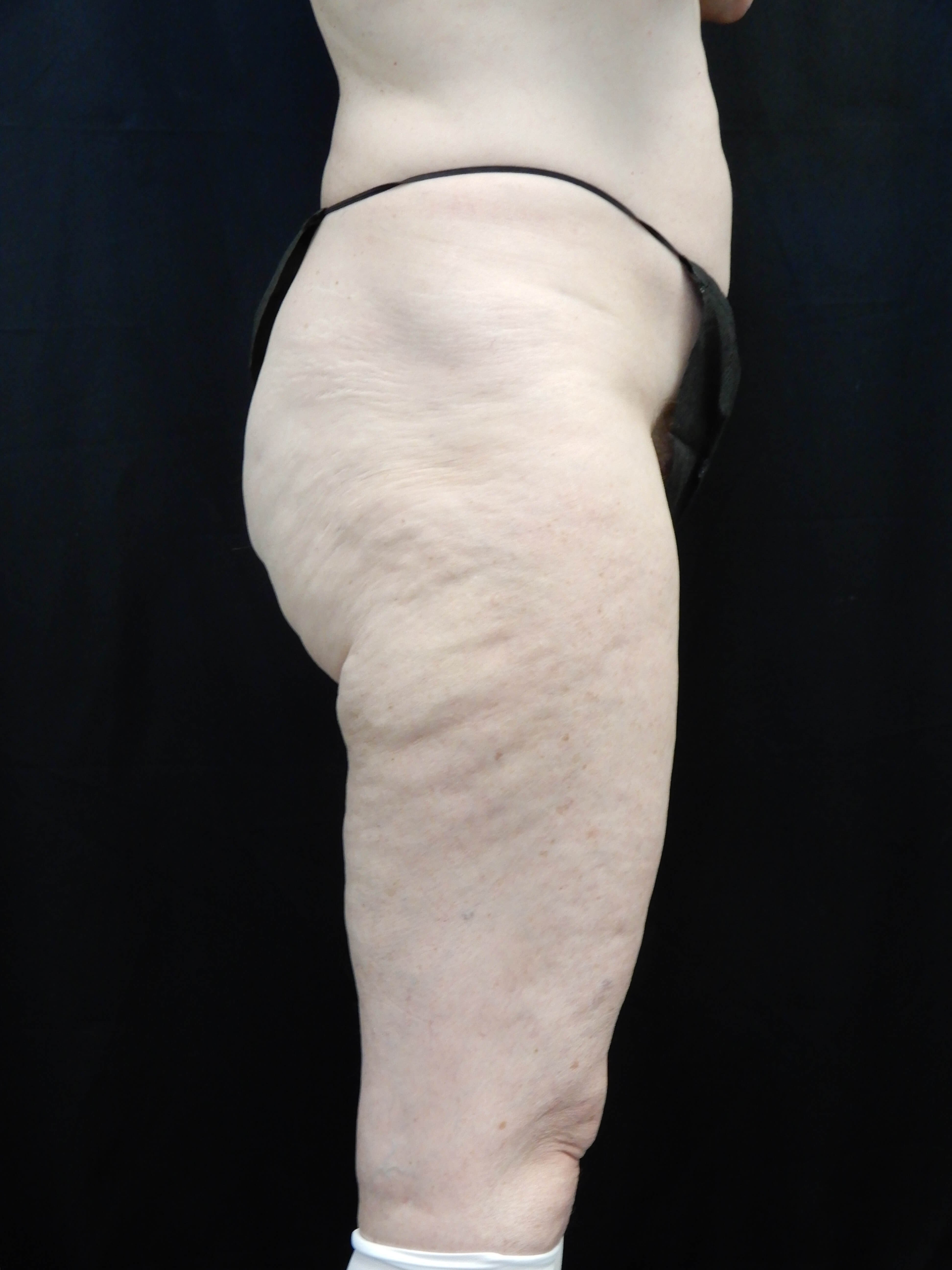 Spiral Thigh and Buttocks Lift Before