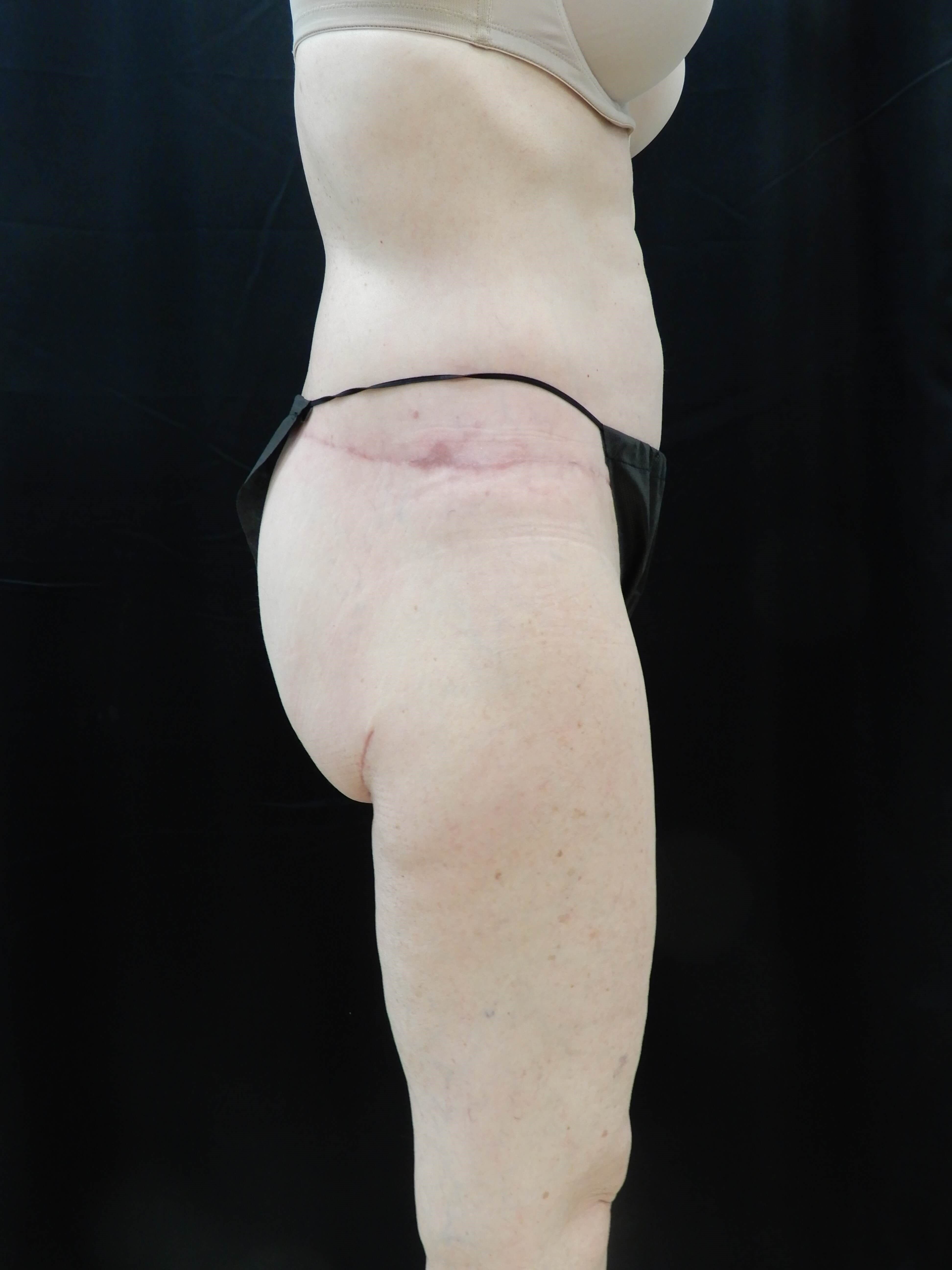 Spiral Thigh and Buttocks Lift After