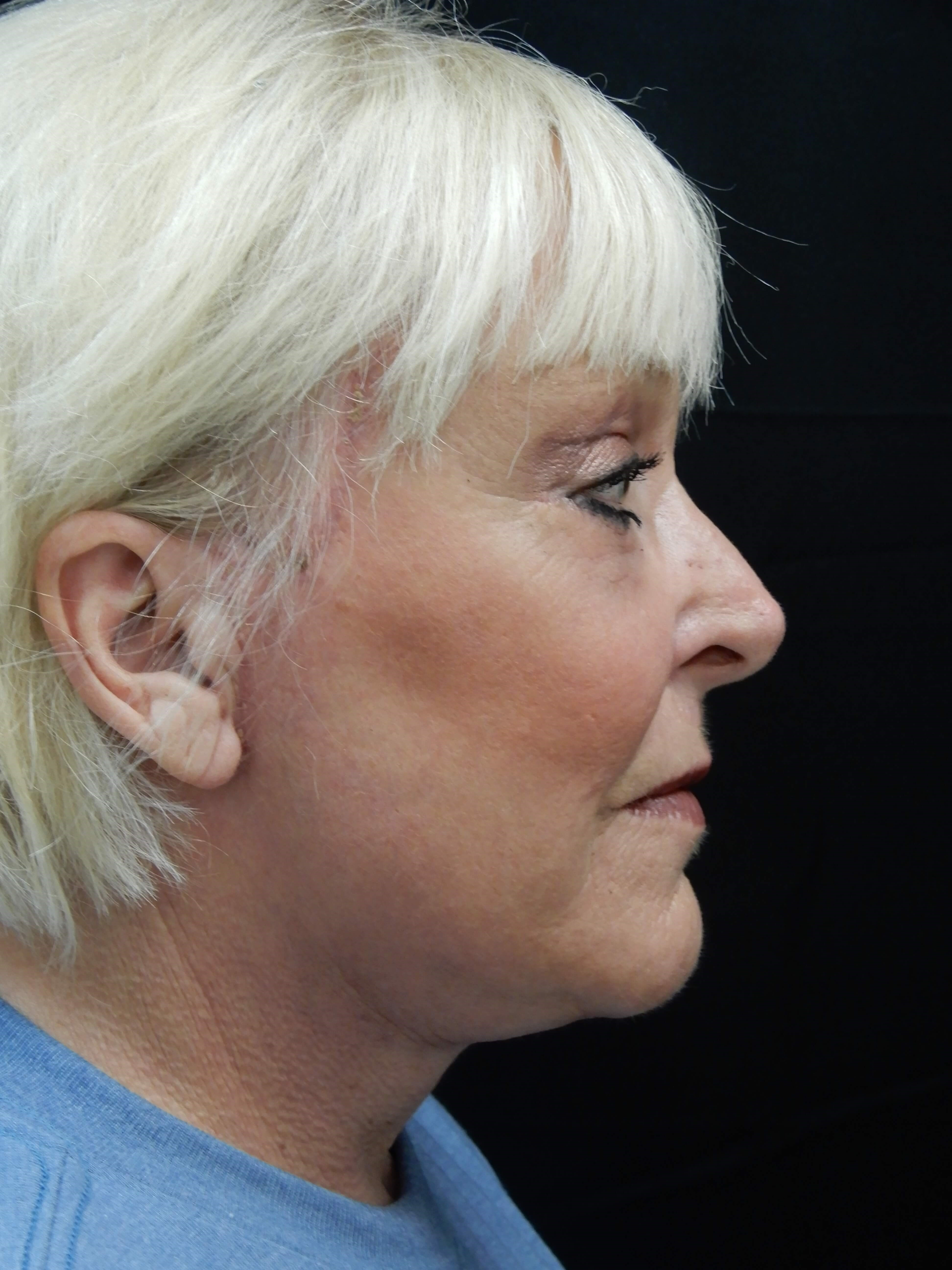 Smartlift - Blepharoplasty After