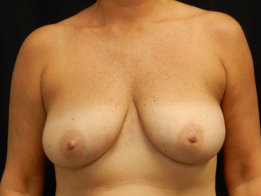 Breast Augmentation w/ Lift Before