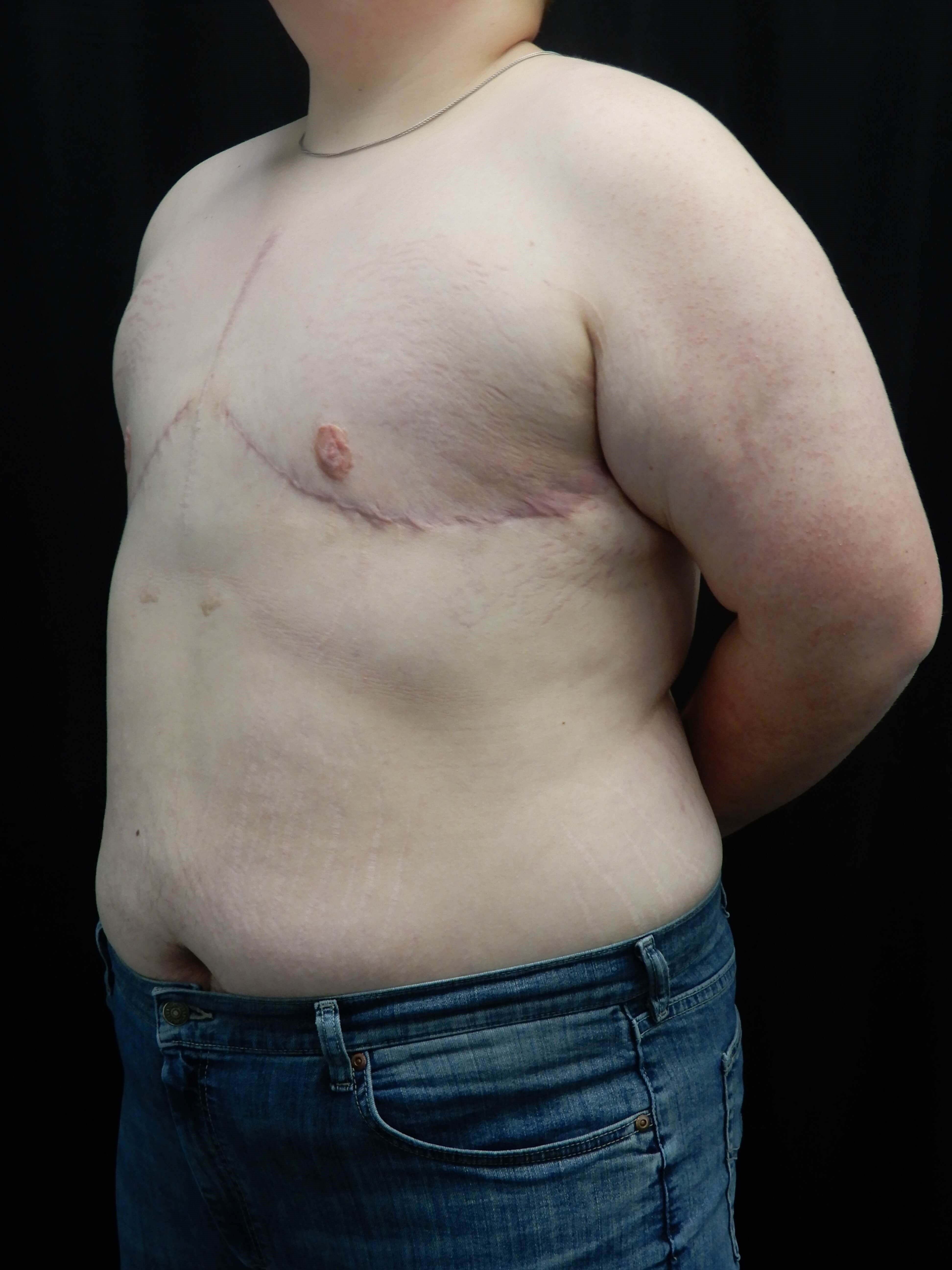 FTM Chest Reconstruction After
