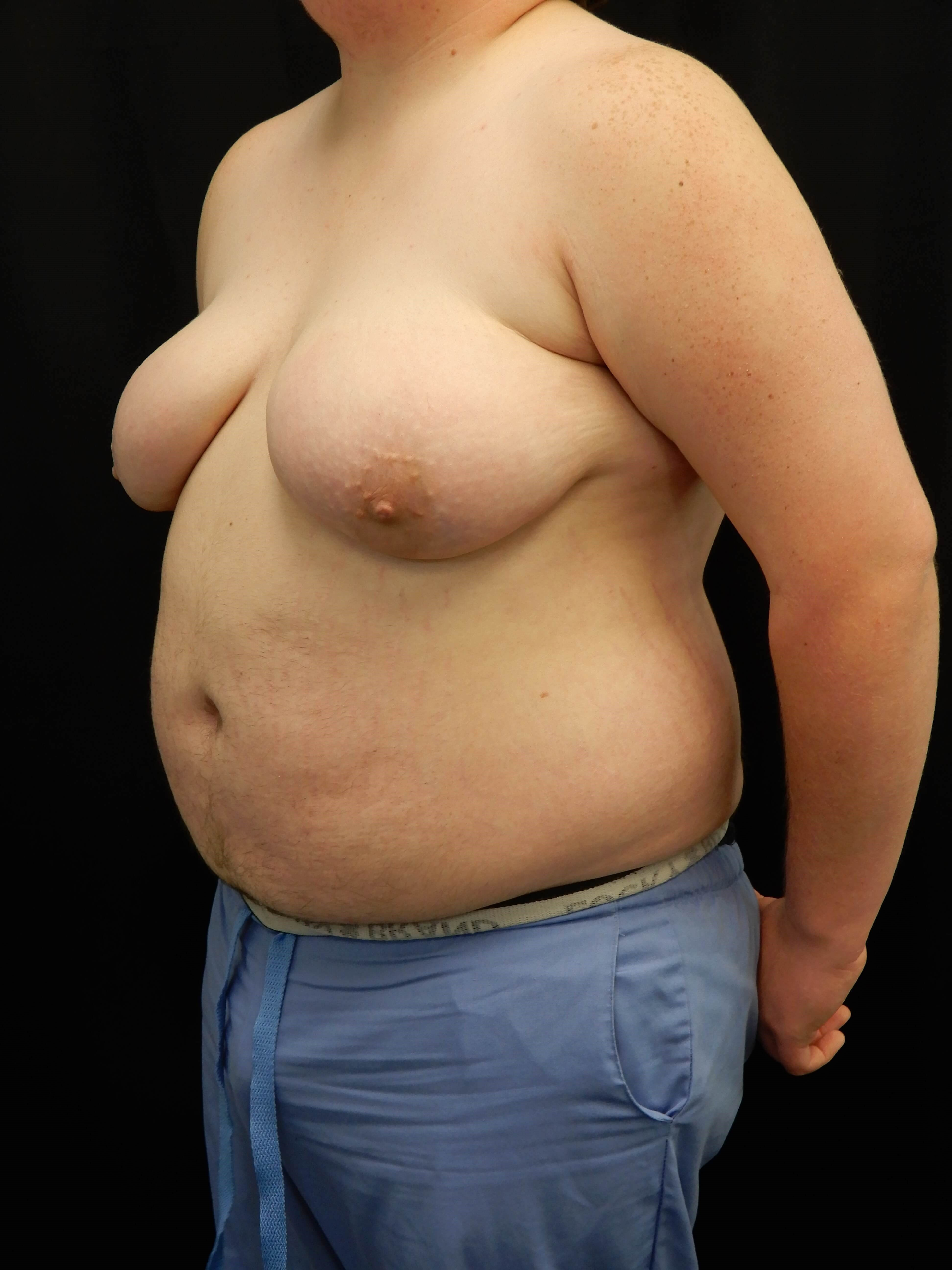 FTM Chest Reconstruction Before