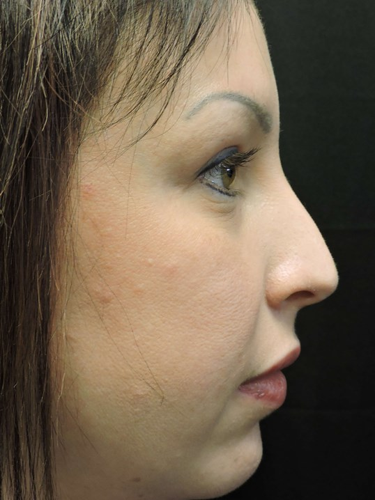 RHINOPLASTY: Nose Surgery Before