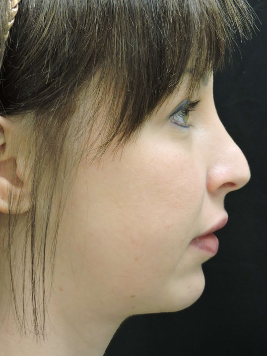 RHINOPLASTY: Nose Surgery After