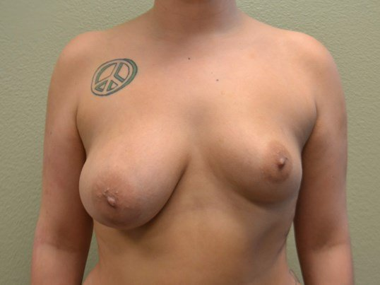 Correction of Breast Asymmetry Before surgery