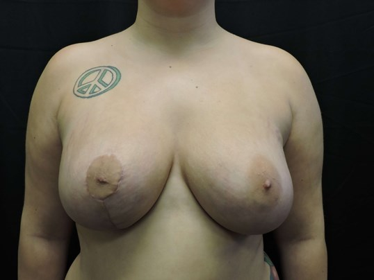 Correction of Breast Asymmetry After surgery