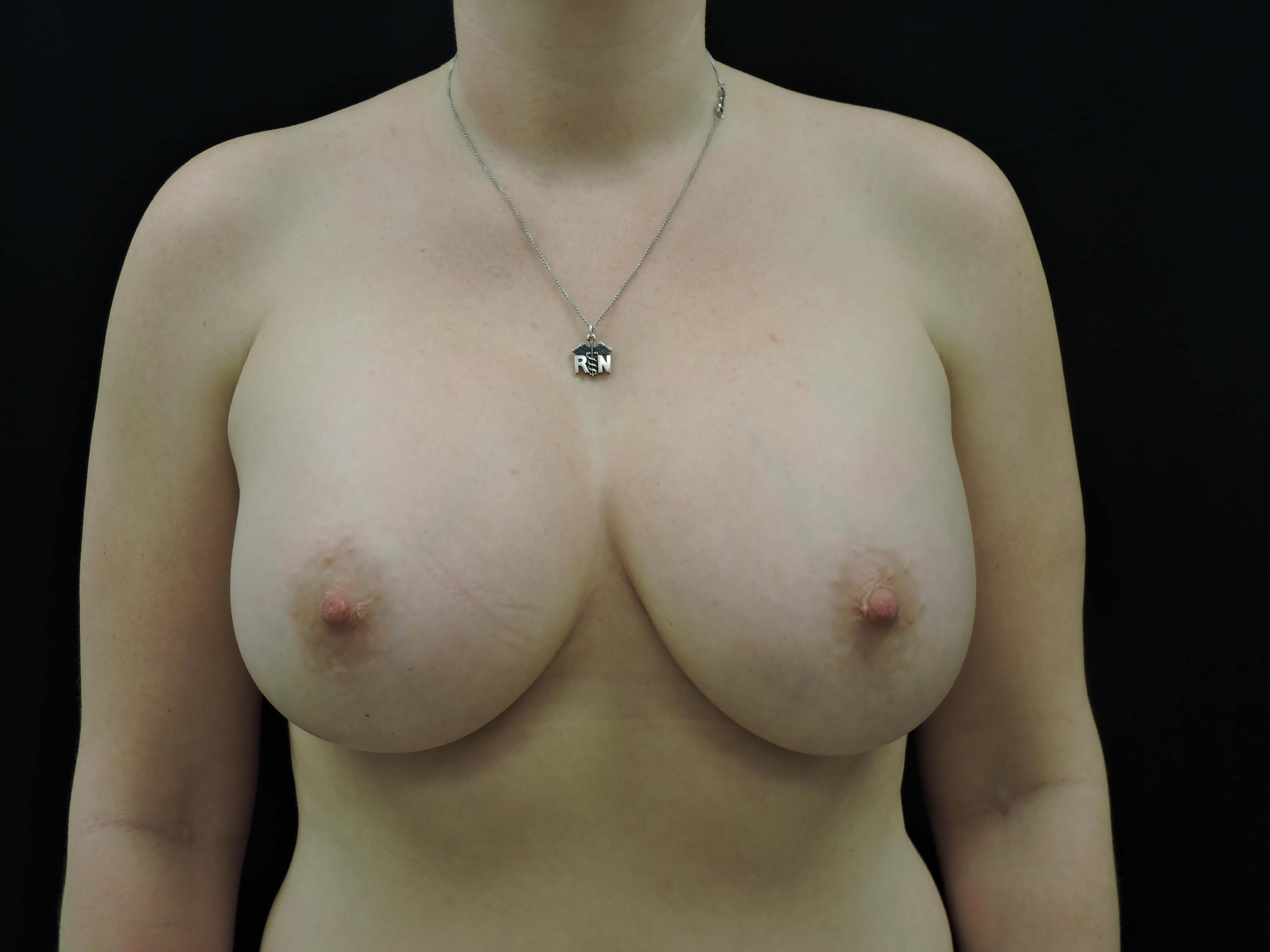 Silicone Breast Augmentation After Breast Implants