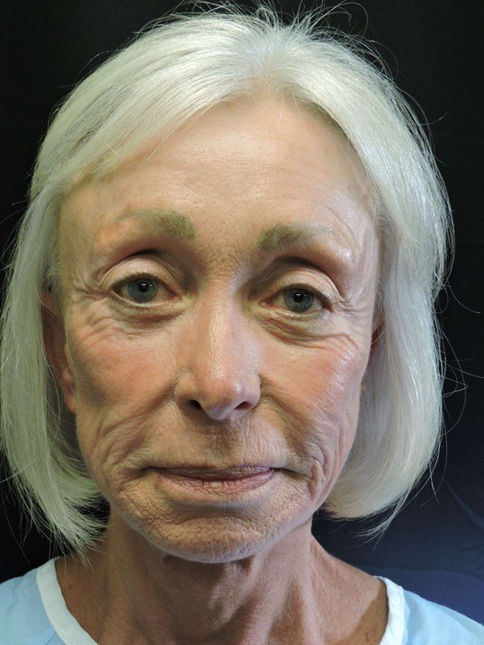 Facelift with Fat Transfer Before
