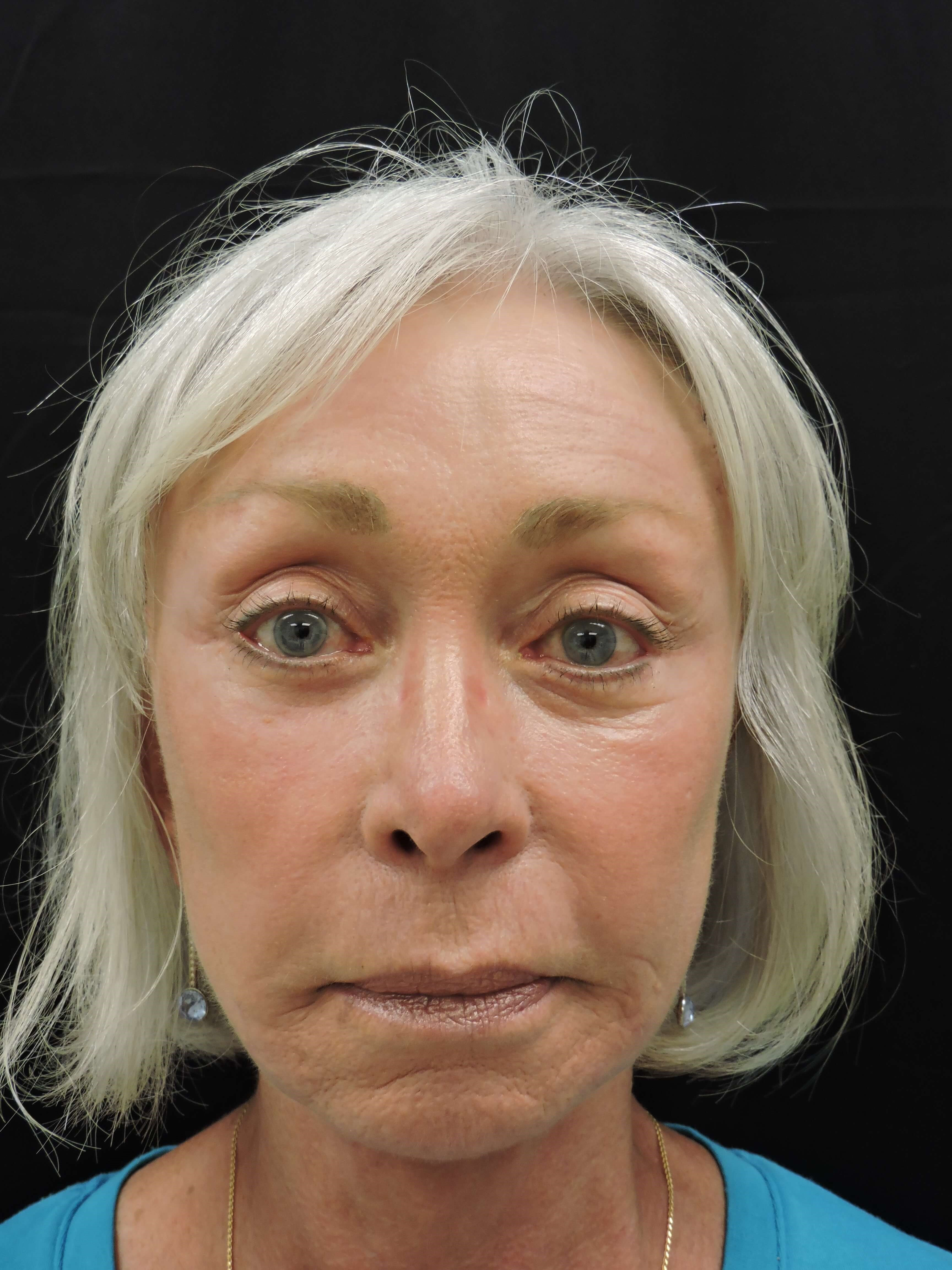 Facelift with Fat Transfer After