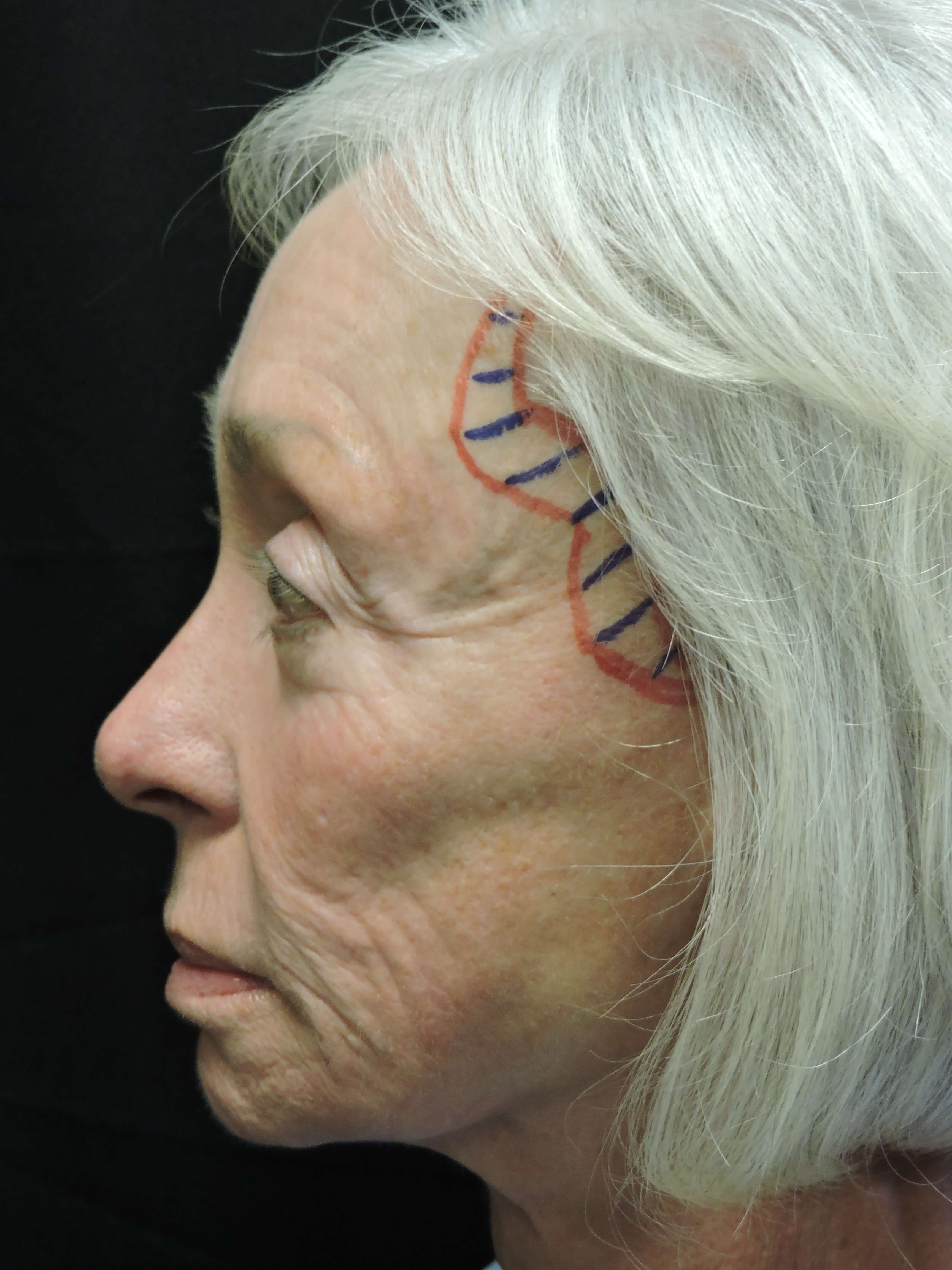 Facelift and fat injection Before