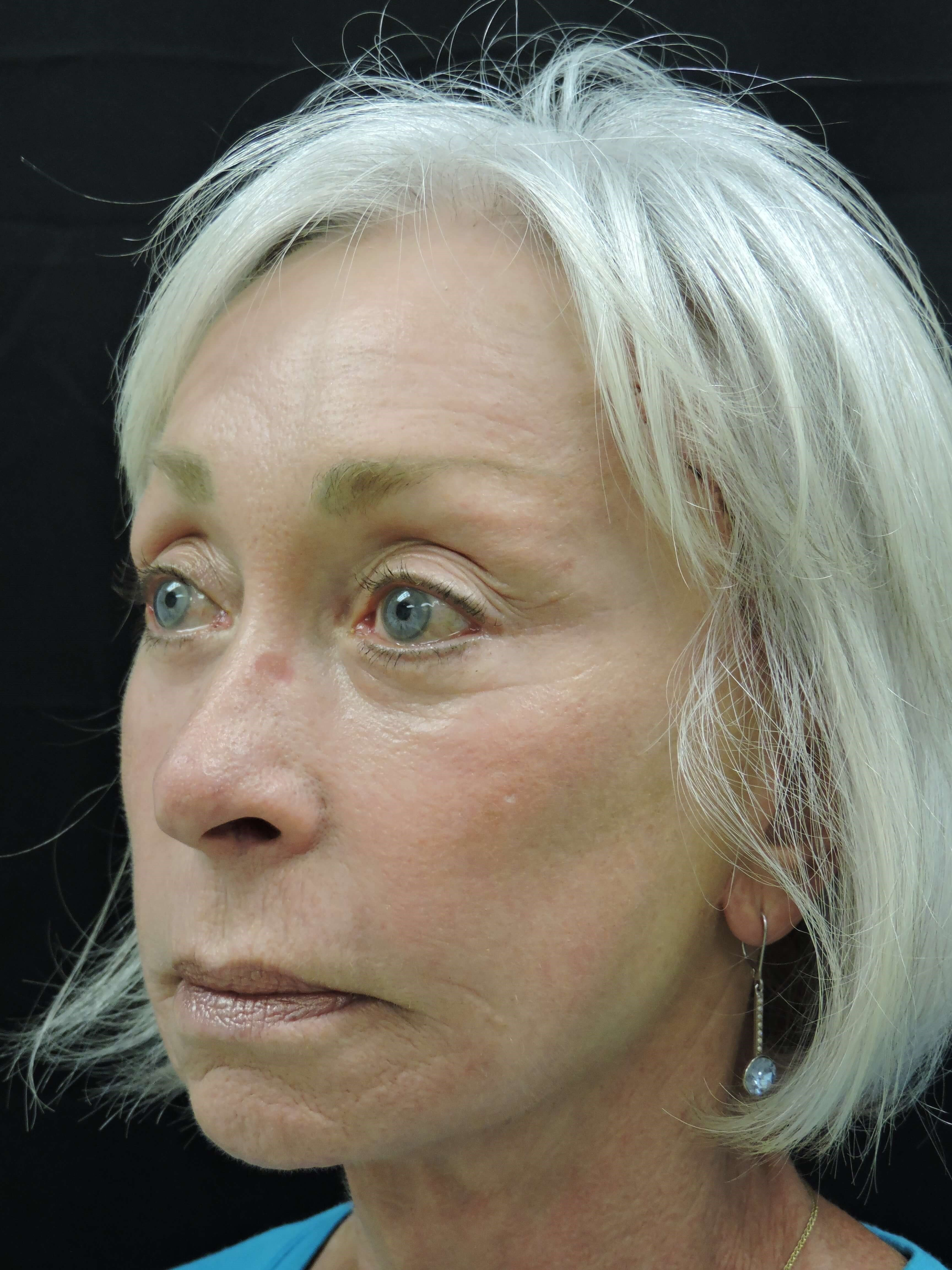 Facelift and fat injection After