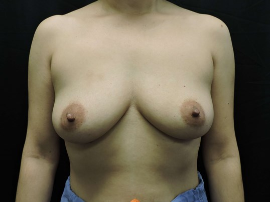 Breast Augmentation - Oklahoma Before- Breast Implants