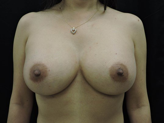 Breast Augmentation - Oklahoma After- Breast Implants