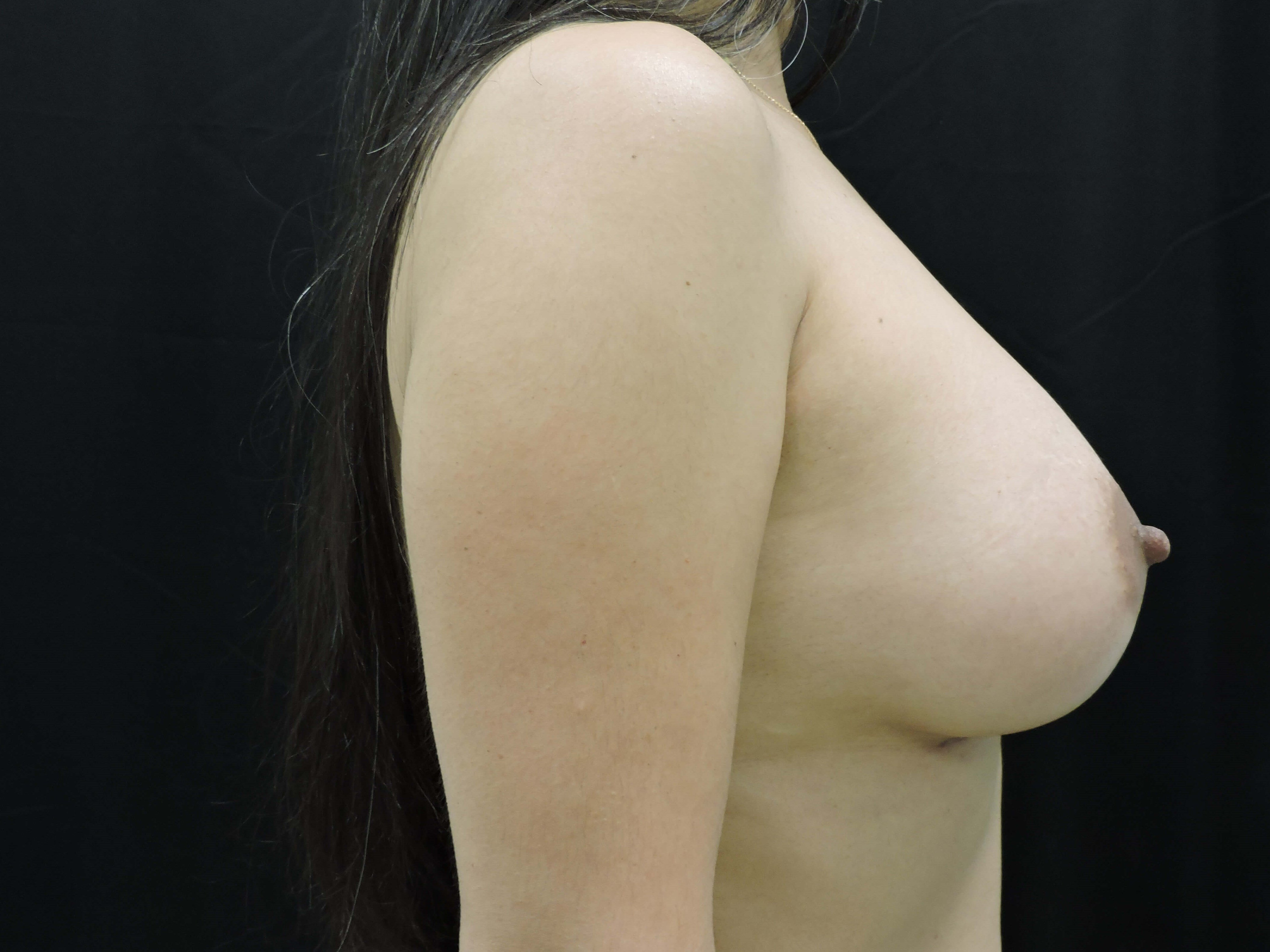 Side view - Oklahoma After - Breast Implants