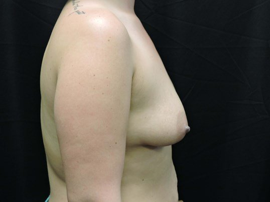 550cc Silicone Breast Implants Before Breast Implants
