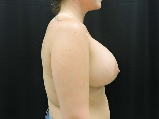 550cc Silicone Breast Implants After Breast Implants
