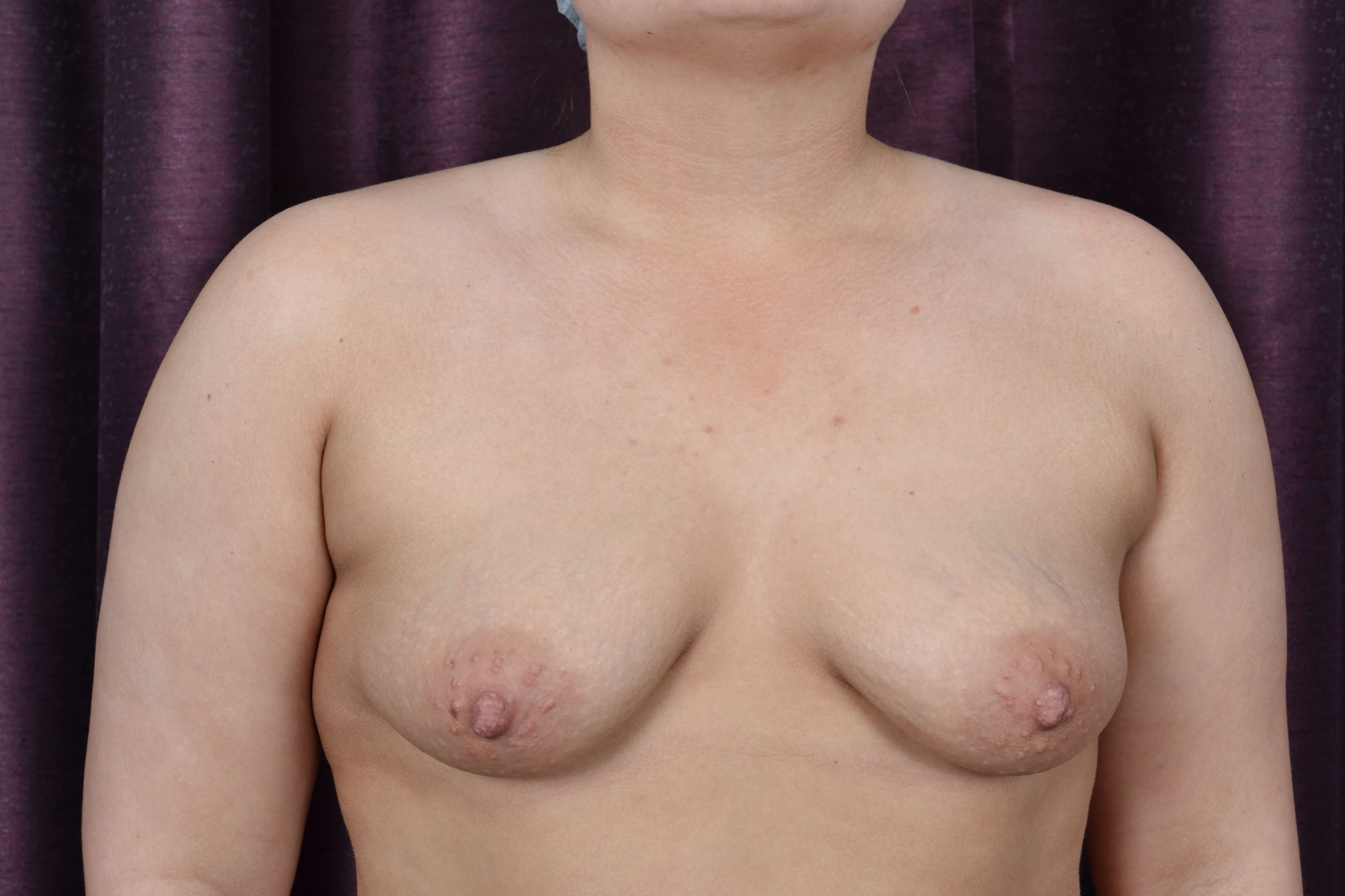 Saline Breast Augmentation Before Breast Implants