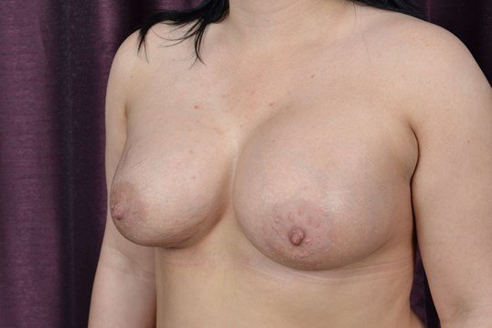 Saline Breast Augmentation After Breast Implants