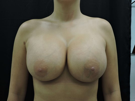 600cc Silicone Breast Implants After Breast Implants