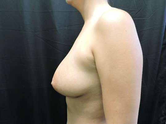 600cc Silicone Breast Implants Before Breast Implants