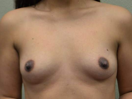 Breast Implants - Front view Before