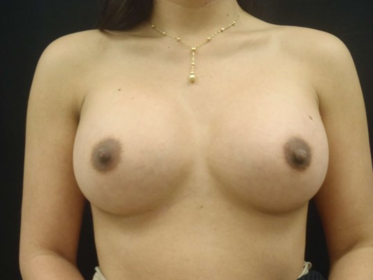 Breast Implants - Front view After