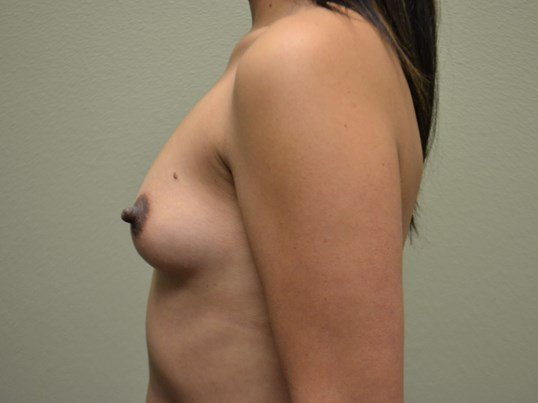 Breast Implants - Side view Before