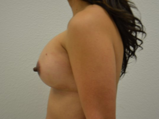 Breast Implants - Side view After