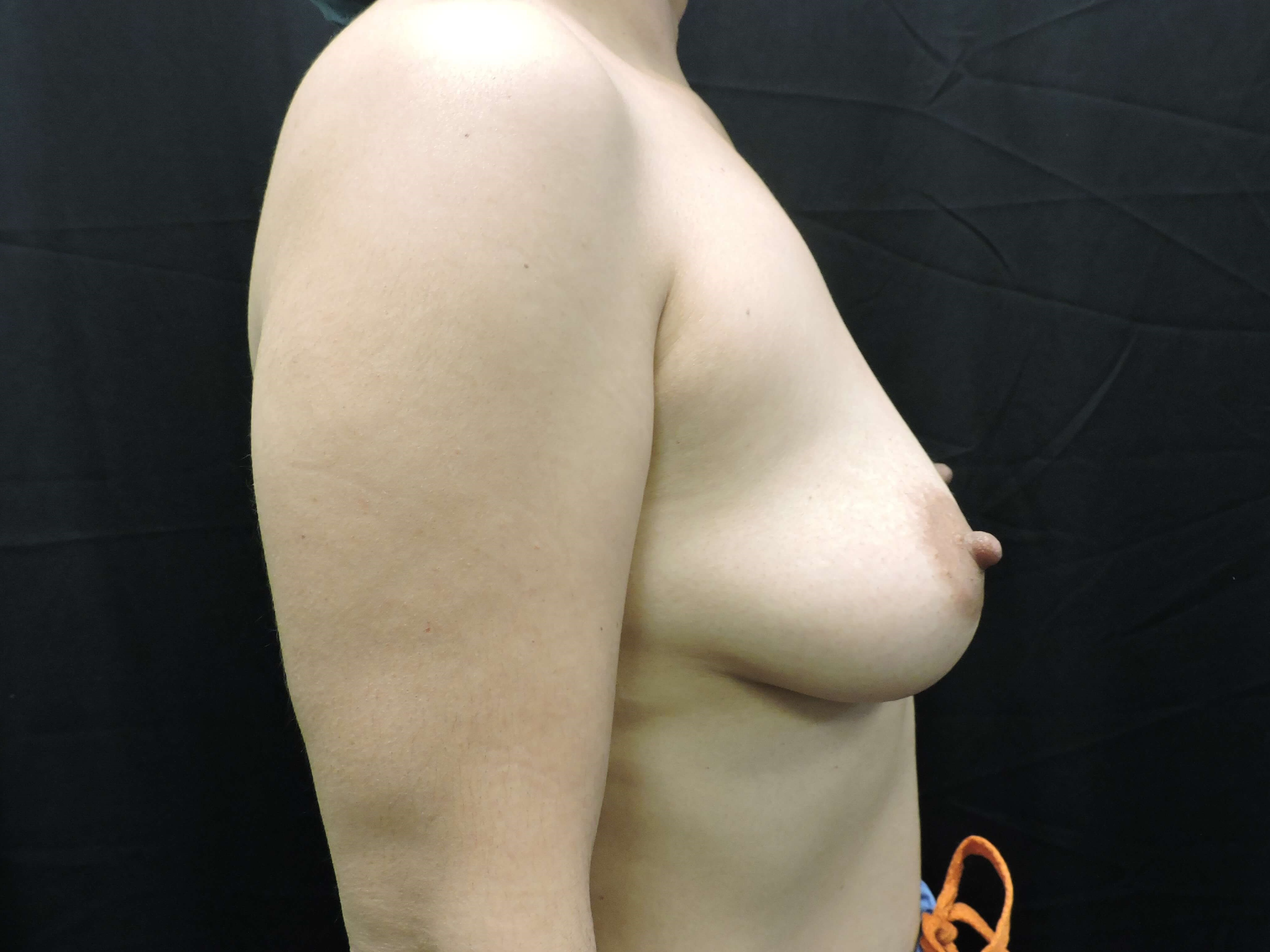 Side view - Oklahoma Before - Breast Implants