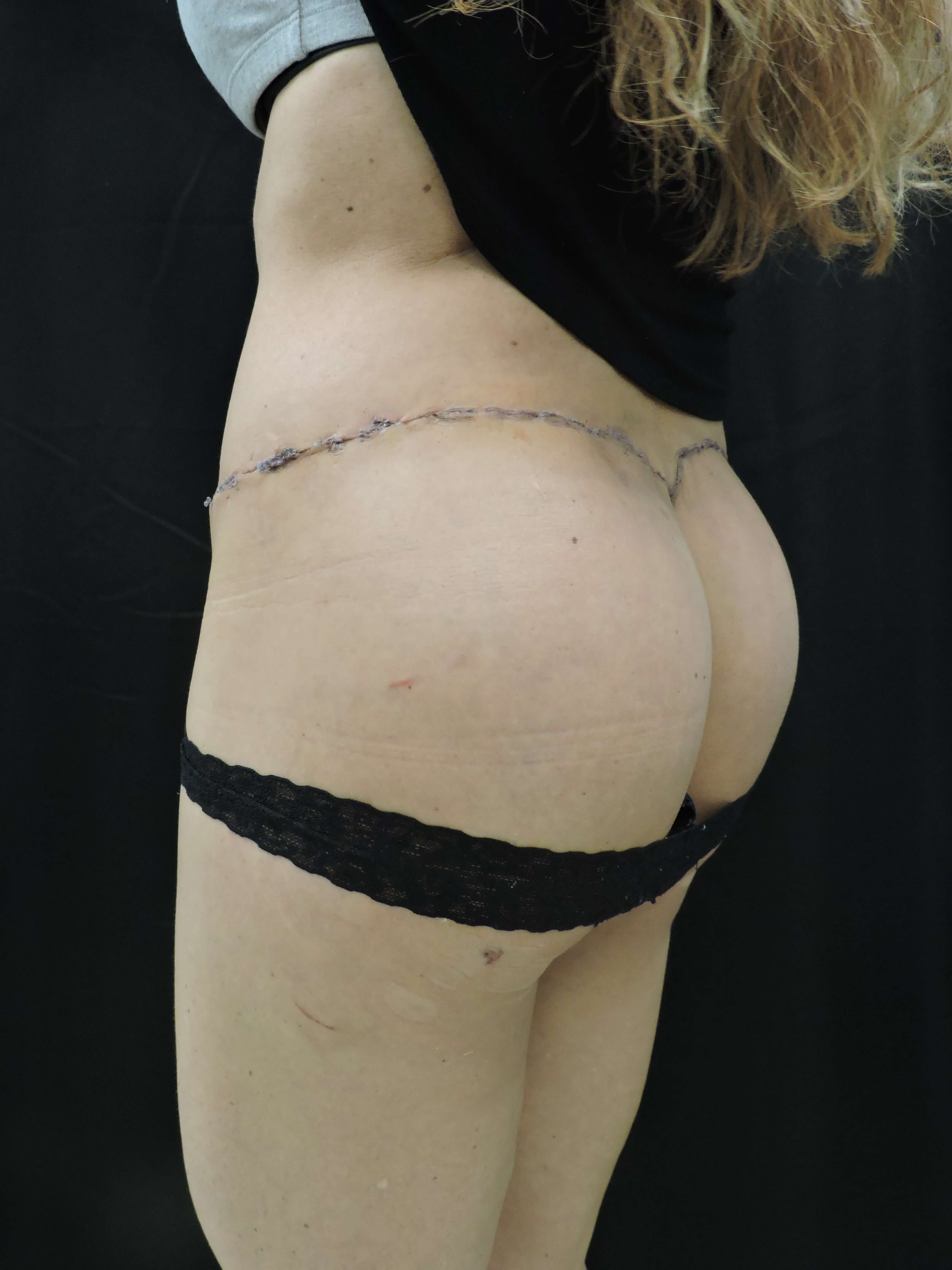 Buttock implants w/ lift After
