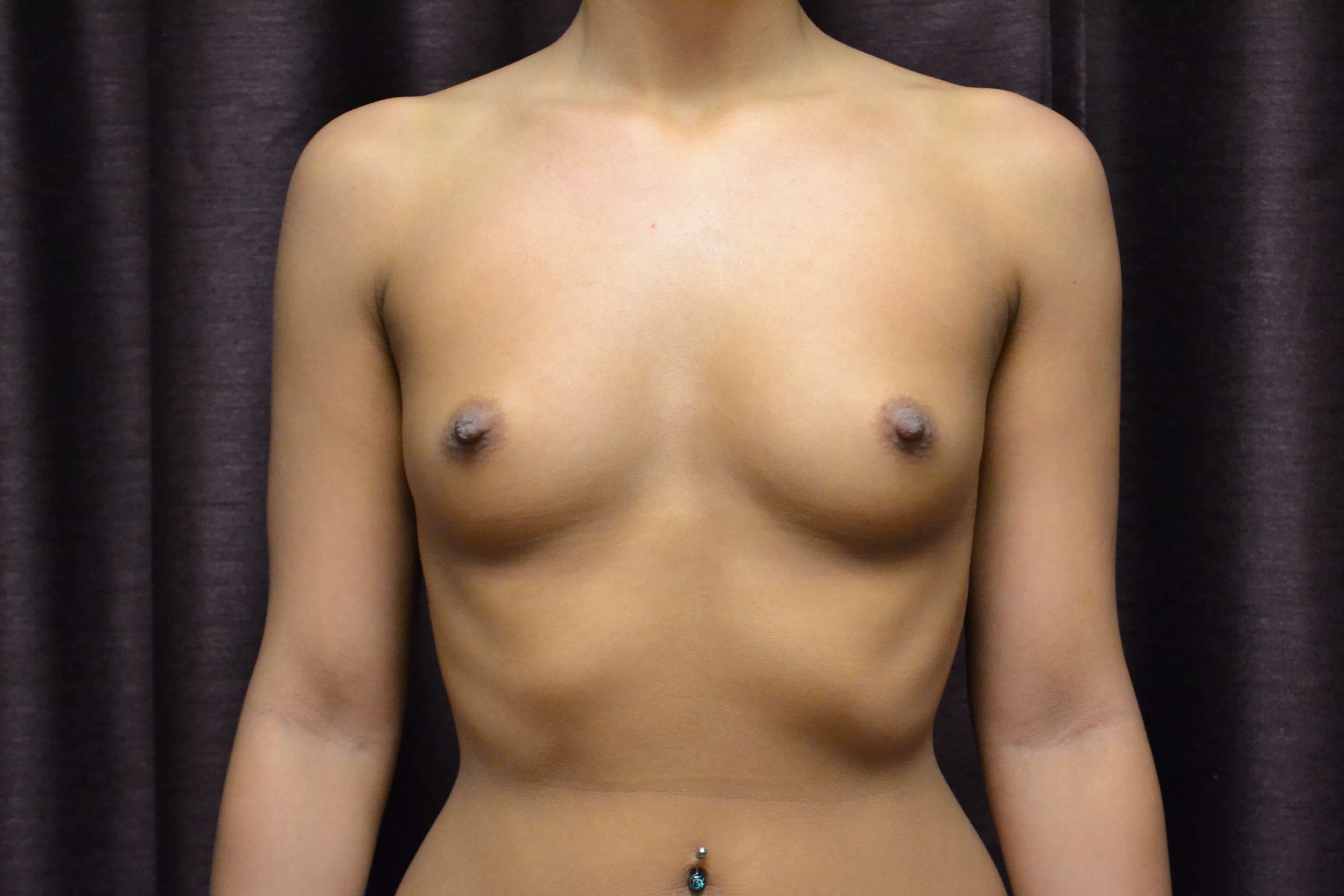 Breast Augmentation - Oklahoma Before
