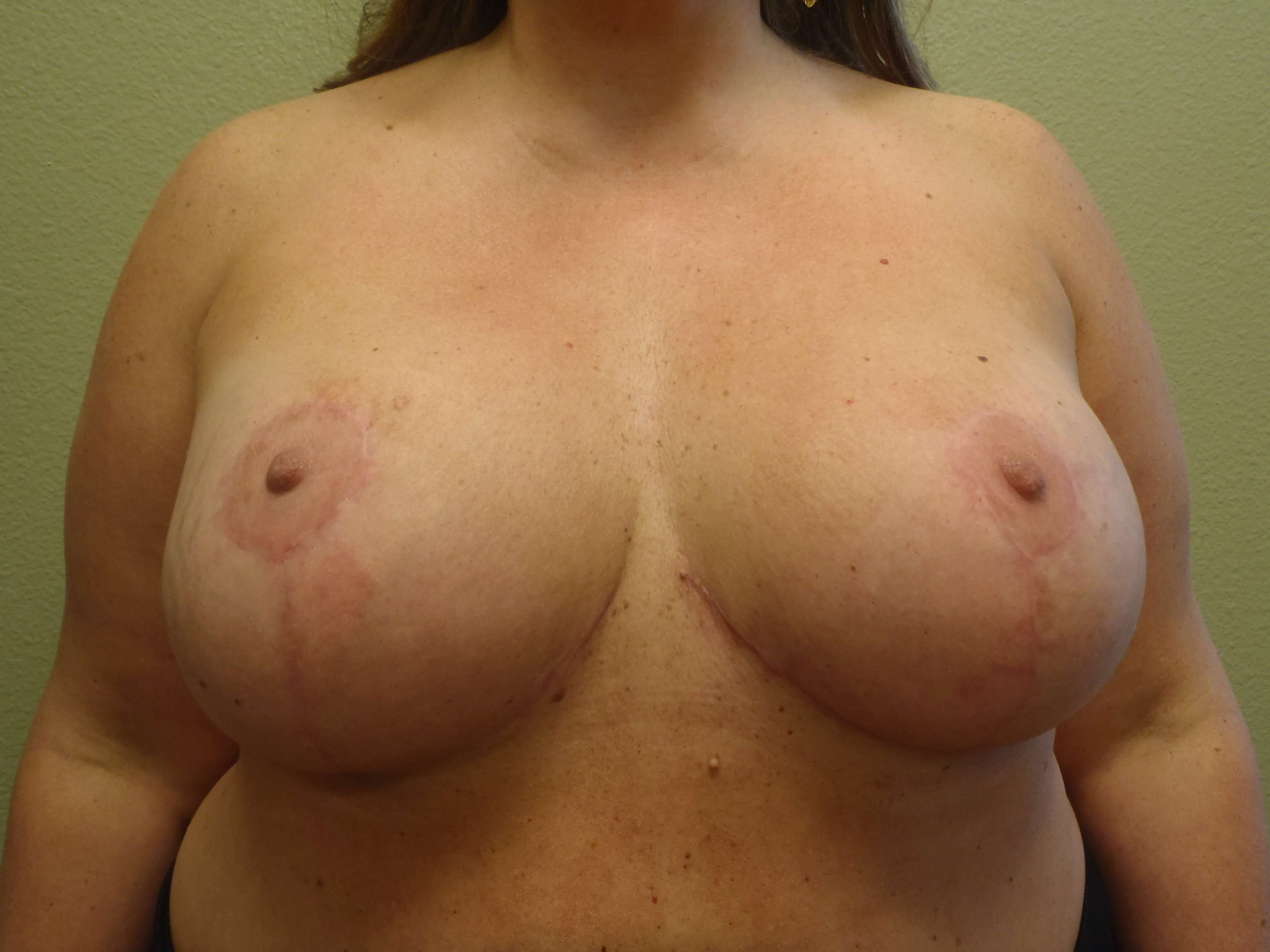Breast Lift with Augmentation After