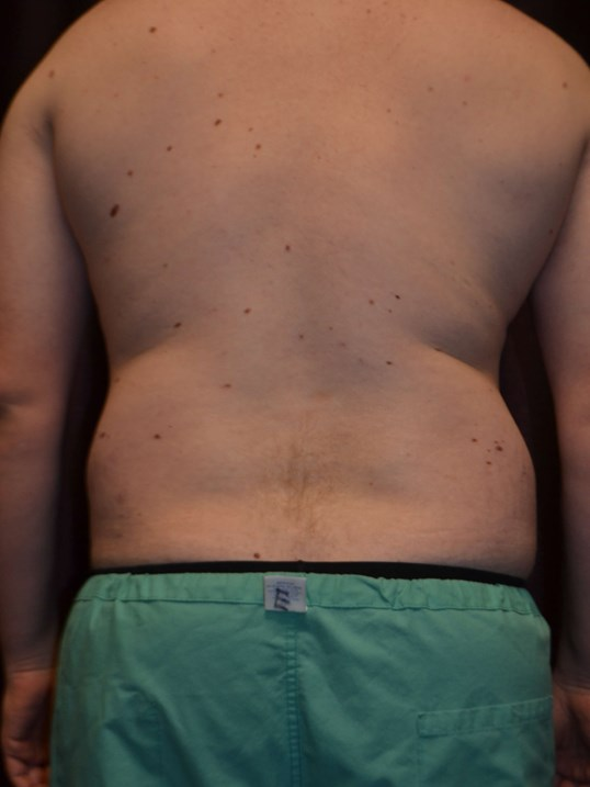 Male Liposuction, Back View Before