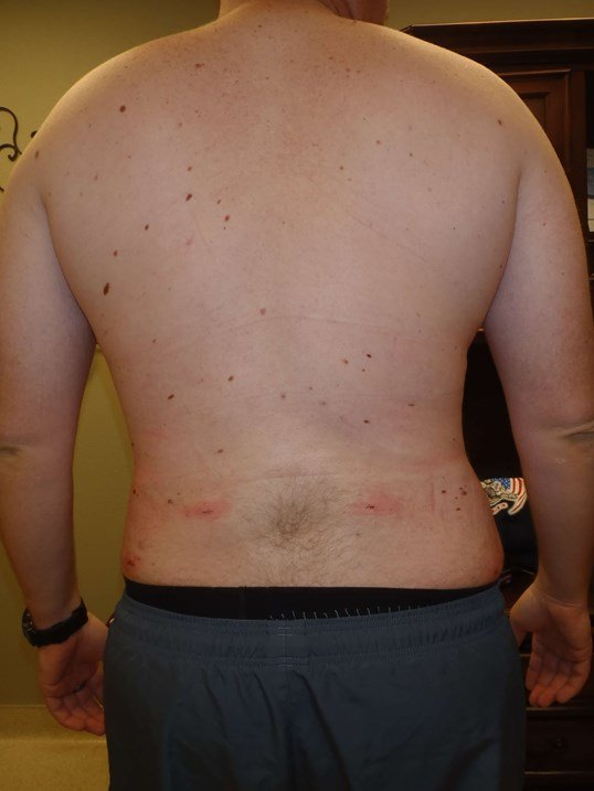 Male Liposuction, Back View After