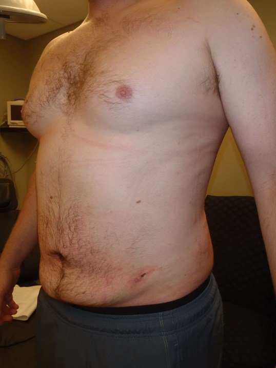 Male Liposuction, Left View After