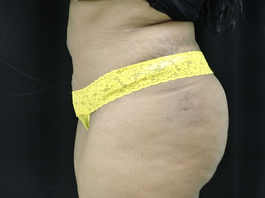 Maxi tummy tuck After