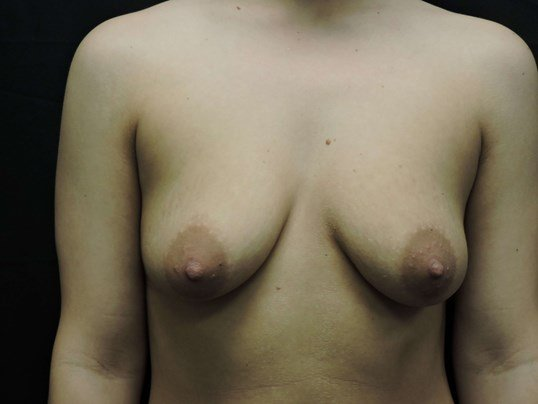 Saline Breast Augmentation OKC Before Breast Implants