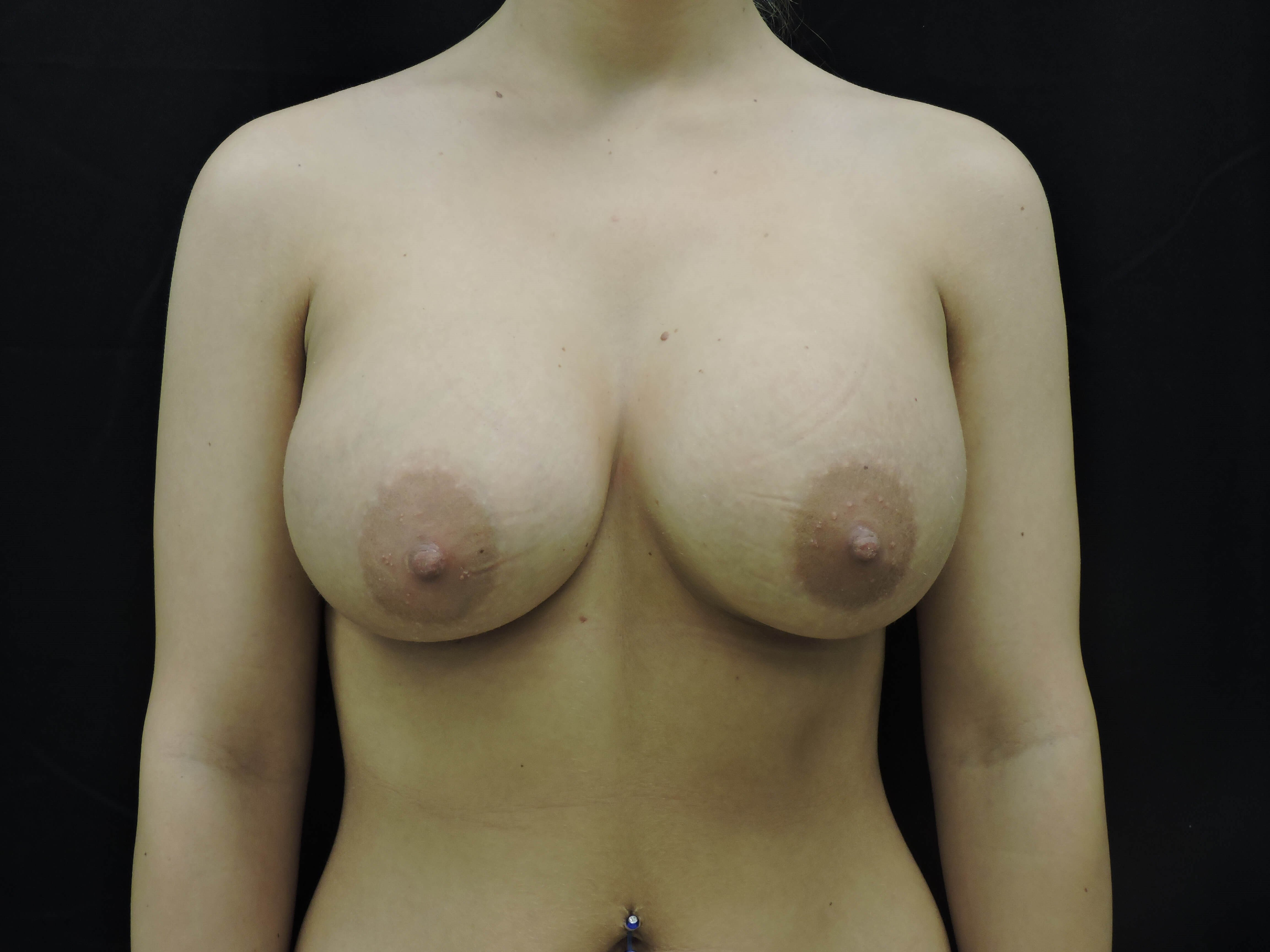 Saline Breast Augmentation OKC After Breast Implants