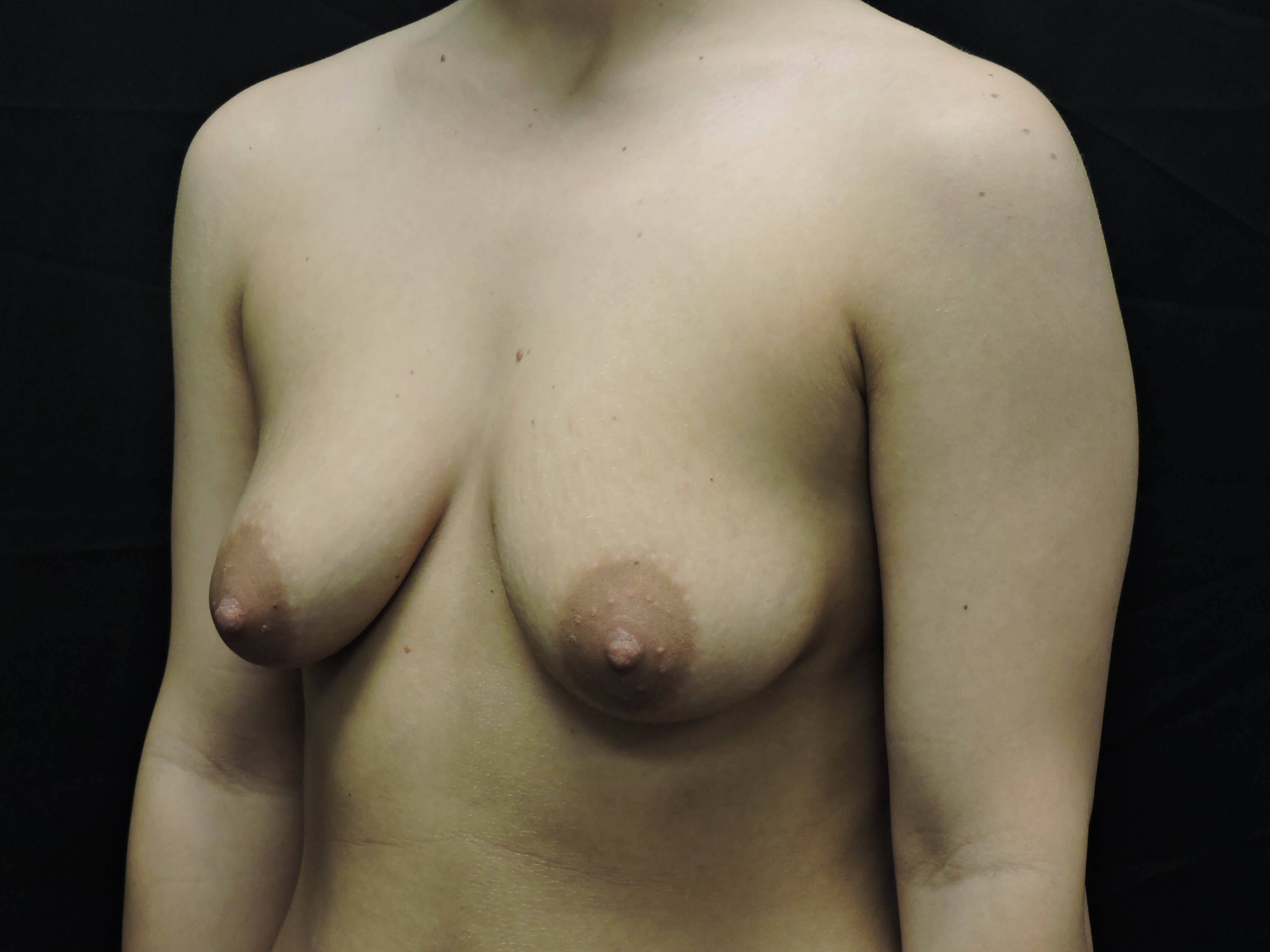 Angle view Before  Breast Implants