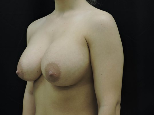 Angle view After Breast Implants