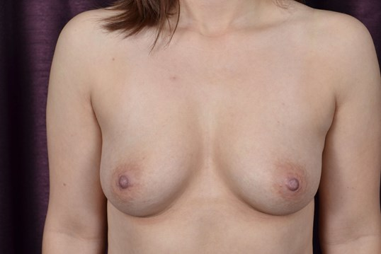 Silicone Breast Auggmentation Before