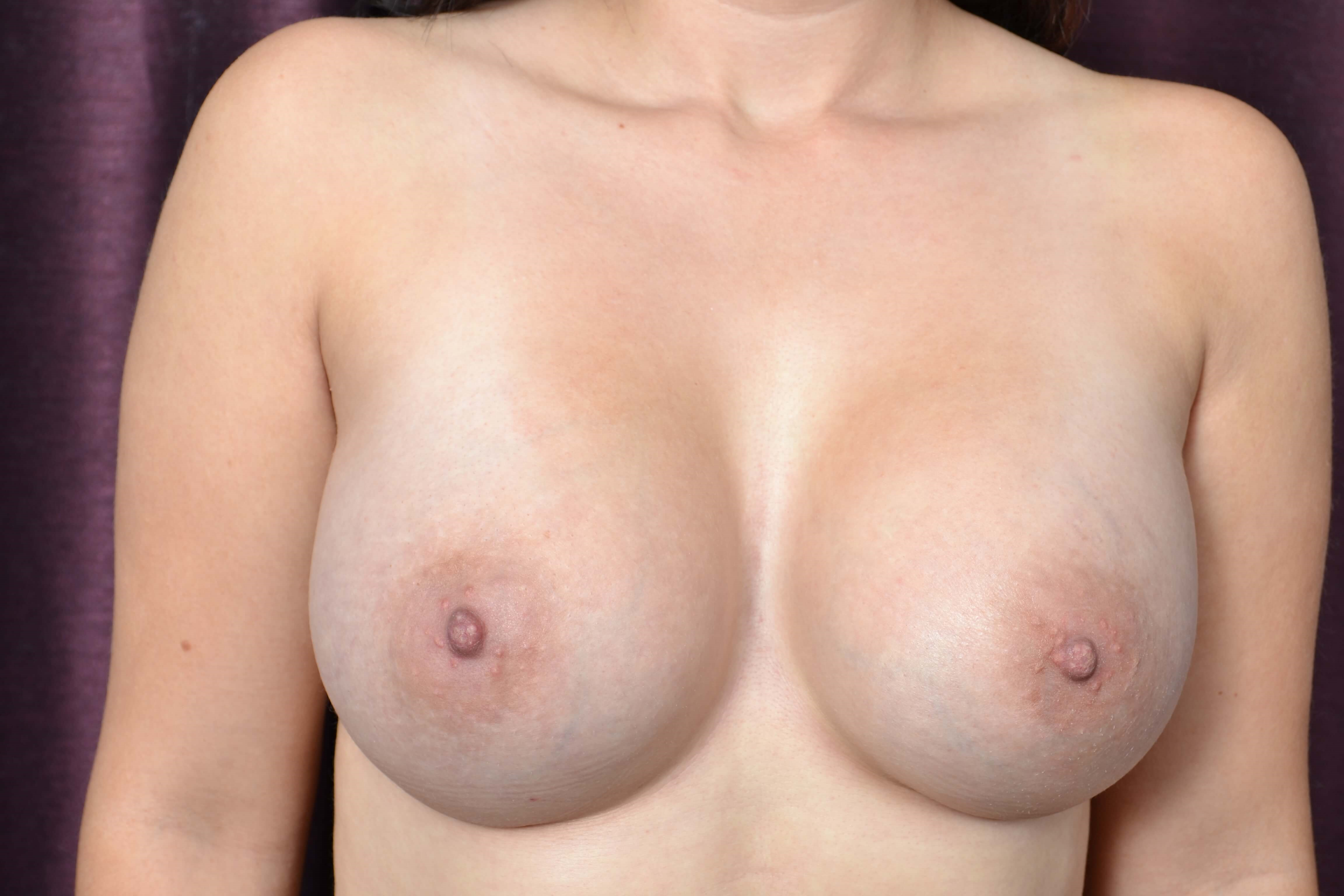 Silicone Breast Auggmentation After