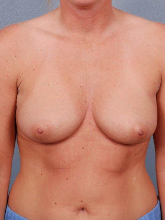 Saline Breast Augmentation OKC Before